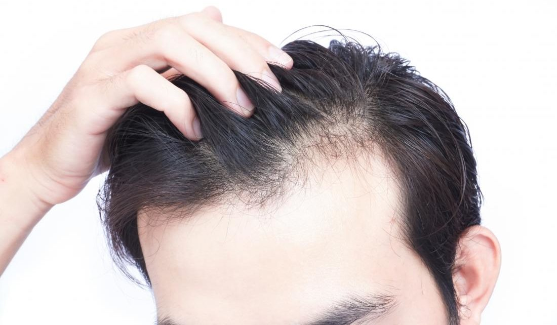 Hair Loss in Younger Men