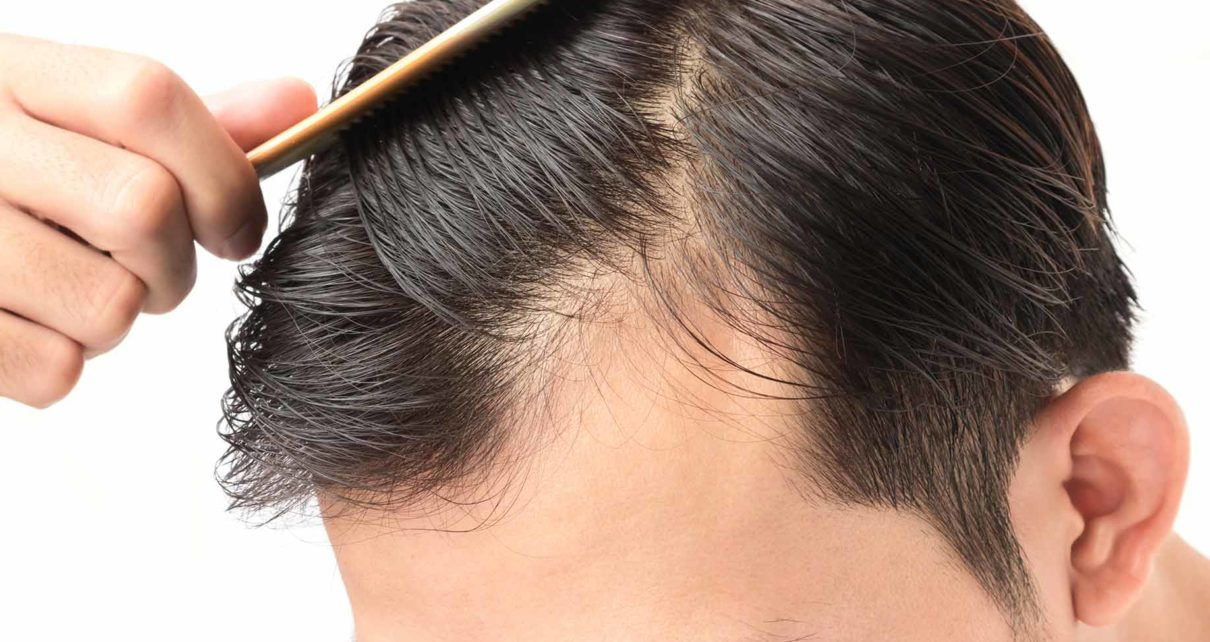 Hair Restoration - Wigs