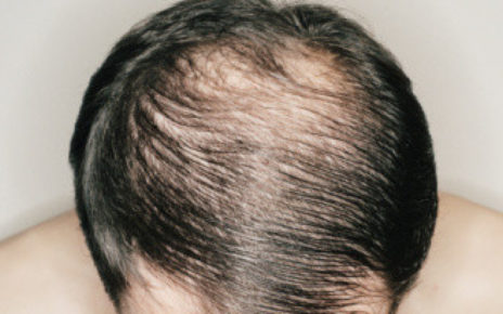 Male Pattern Baldness How to Detect