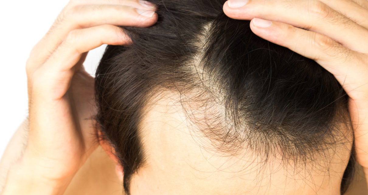 Simple Measures For Your Hair Care Hitch