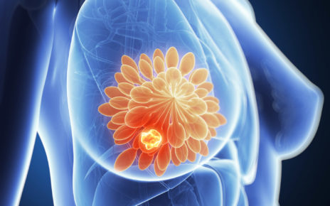 Symptoms & Remedy For Breast Cancer In India Online