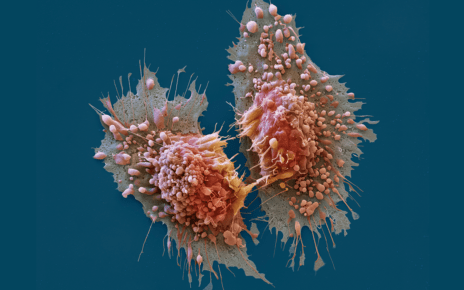 The Basics About Kidney Cancer