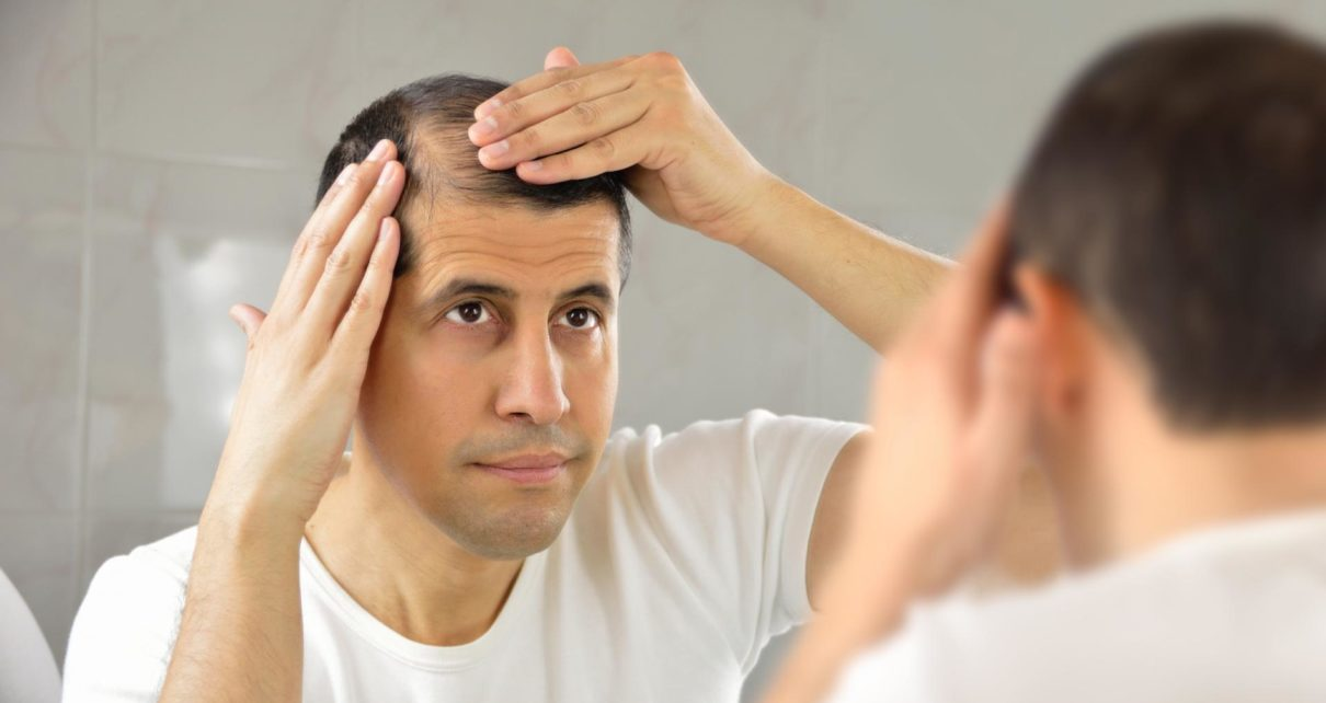 Traction Alopecia An FAQ