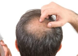 Why People With Alopecia Don'T Like The Conventional Treatment Methods