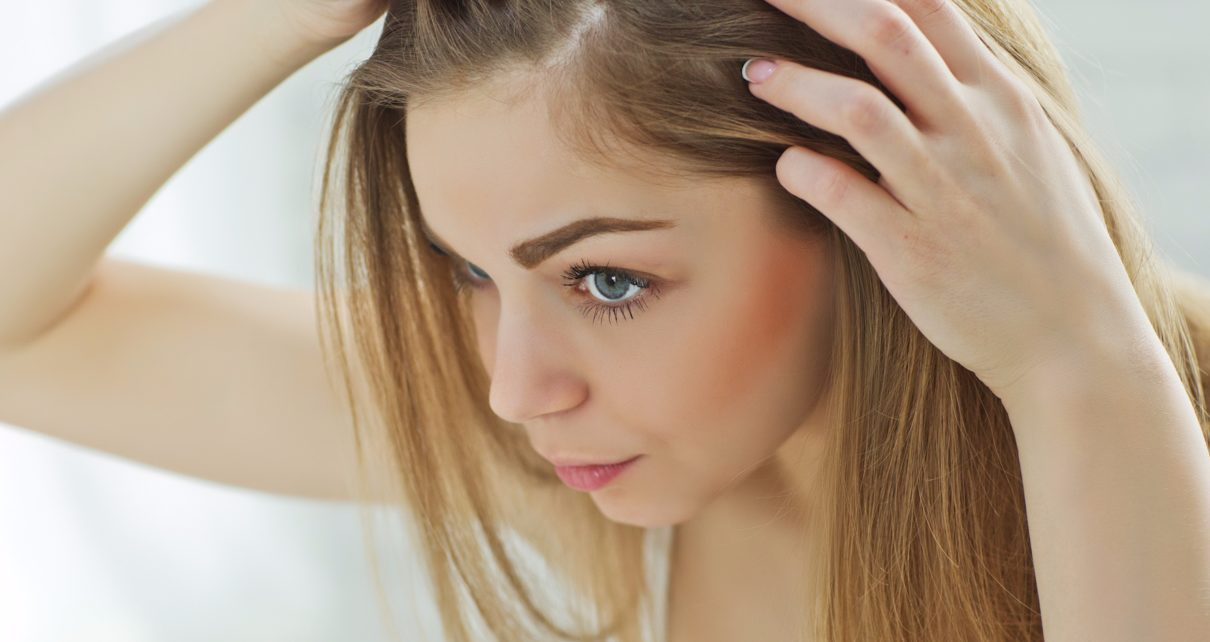 Hair Loss Archives - About Healthy Life